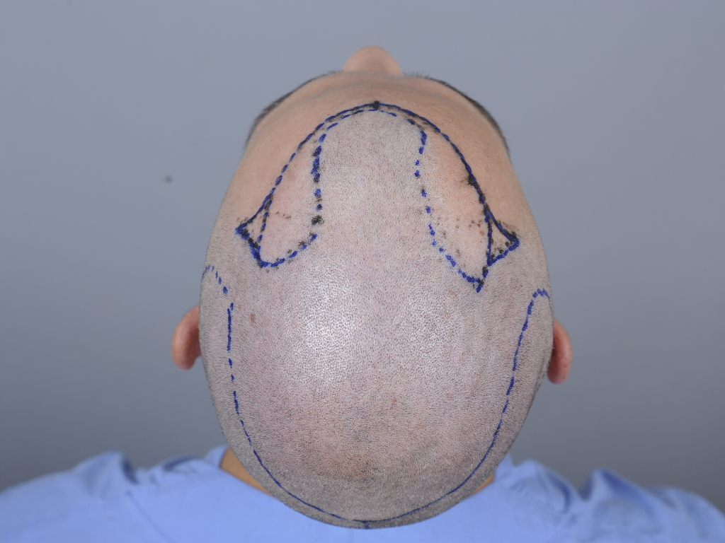 vor der Operation-1